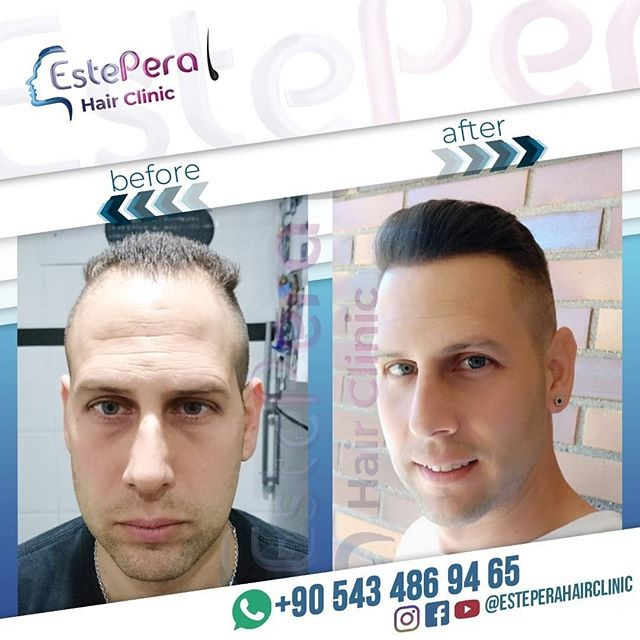 Before After Results