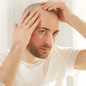 كم من الوقت تستغرق عملية زرع الشعر وهل سيتكرر تساقط الشعر؟