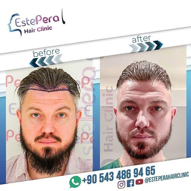 Avant&Après Les Résultats