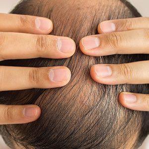 Les patients infectés par le VIH peuvent-ils avoir une greffe de cheveux?