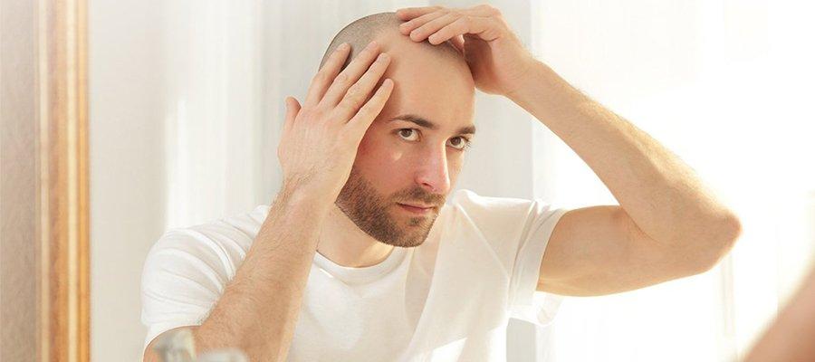 Combien de Temps Prend le Processus de Greffe de Cheveux?