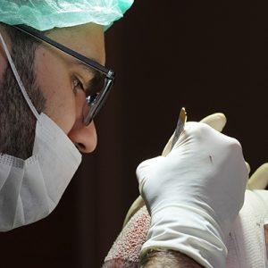Causes De l'Alopécie Chez Les Hommes et Solutions Permanentes
