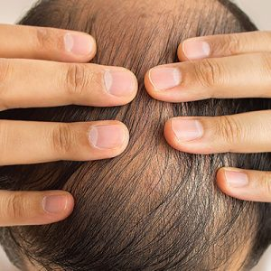 Can HIV Patients have a Hair Transplant?