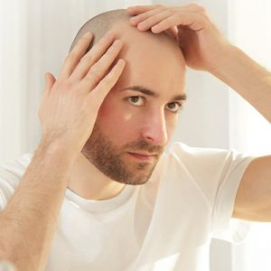 How Long Does The Hair Transplant Process Take?